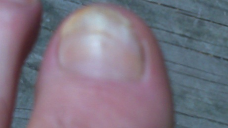 My big toe two months after smashing.